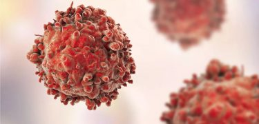 New Israeli Cancer Treatment Has a 100% Tumor Shrinkage Rate